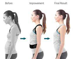 before and after posture corrector